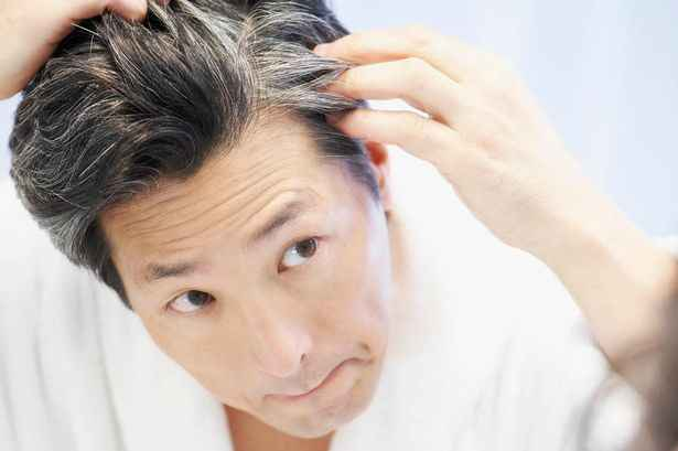 The modern lifestyle, pollution, and changes in food habits come up with the most embarrassing hair greying.