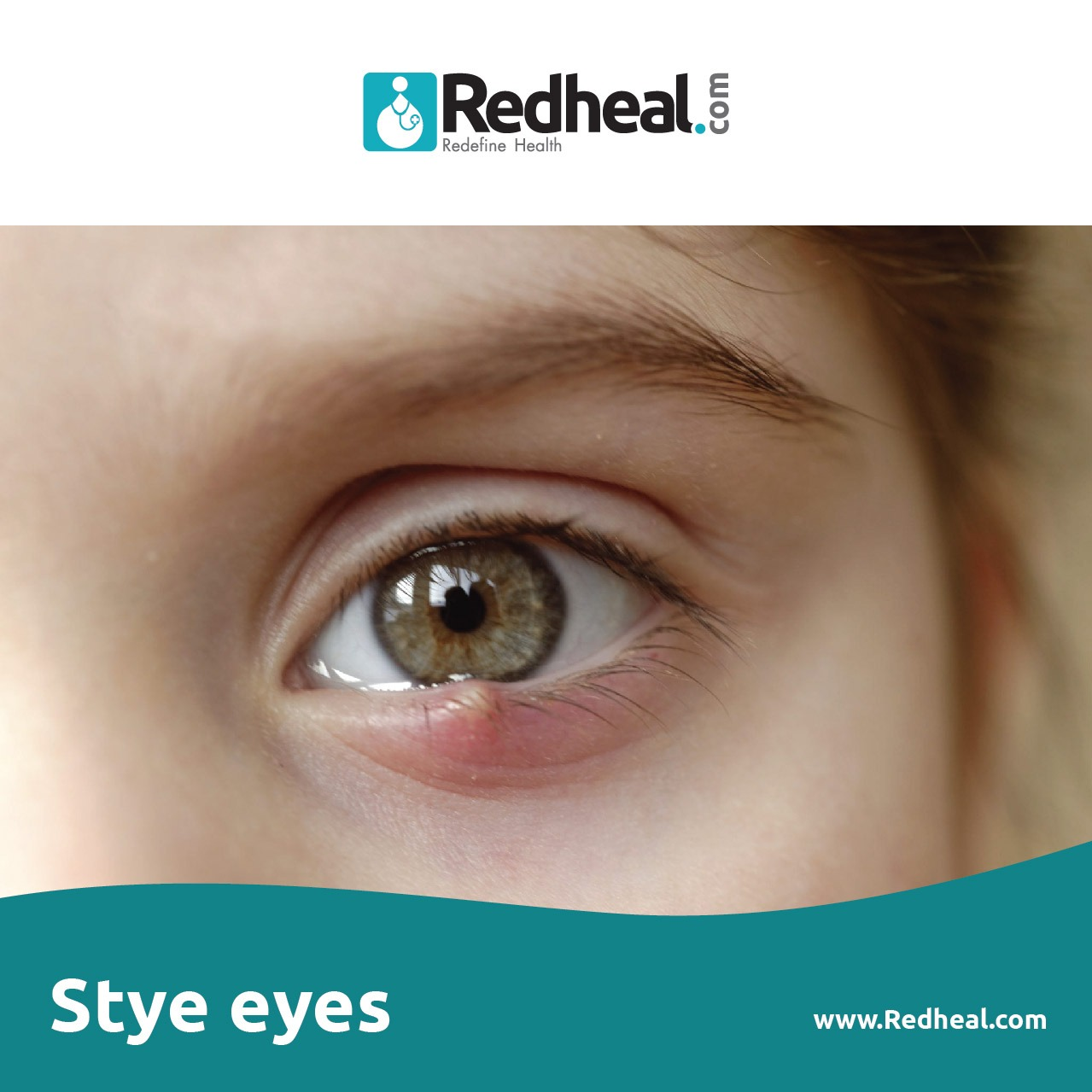 styeeyes symptoms and Treatment