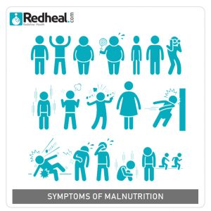 malnutritionsymptoms,paediatricians near me