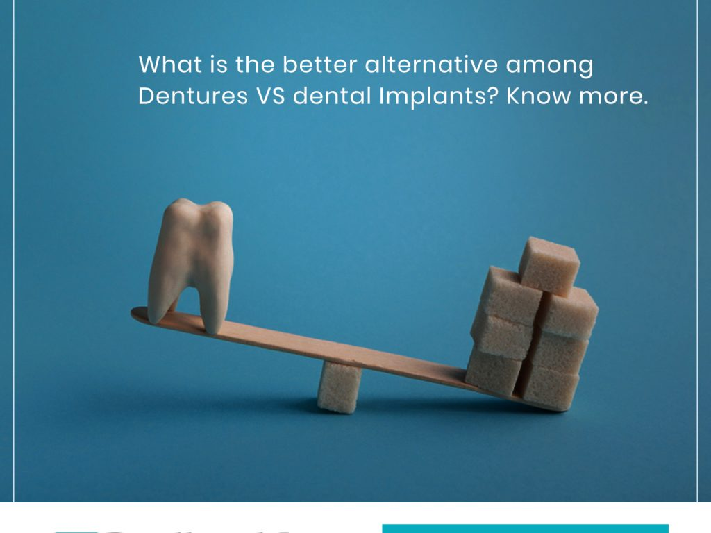What is the better alternative among Dentures VS Dental Implants? Know more.