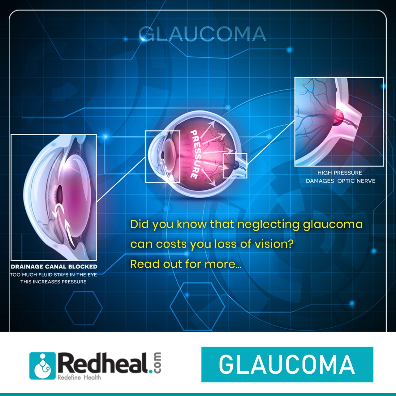 Symptoms and Prevention of Glaucoma