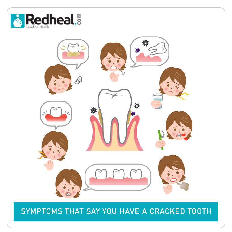 Signs that say you have a broken teeth