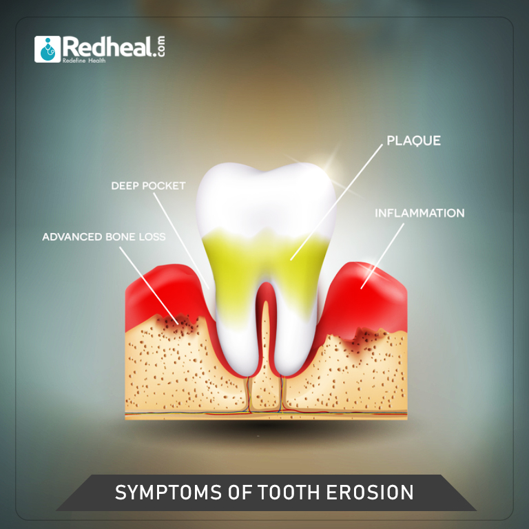 Symptoms and Risk Factors of Tooth Decay