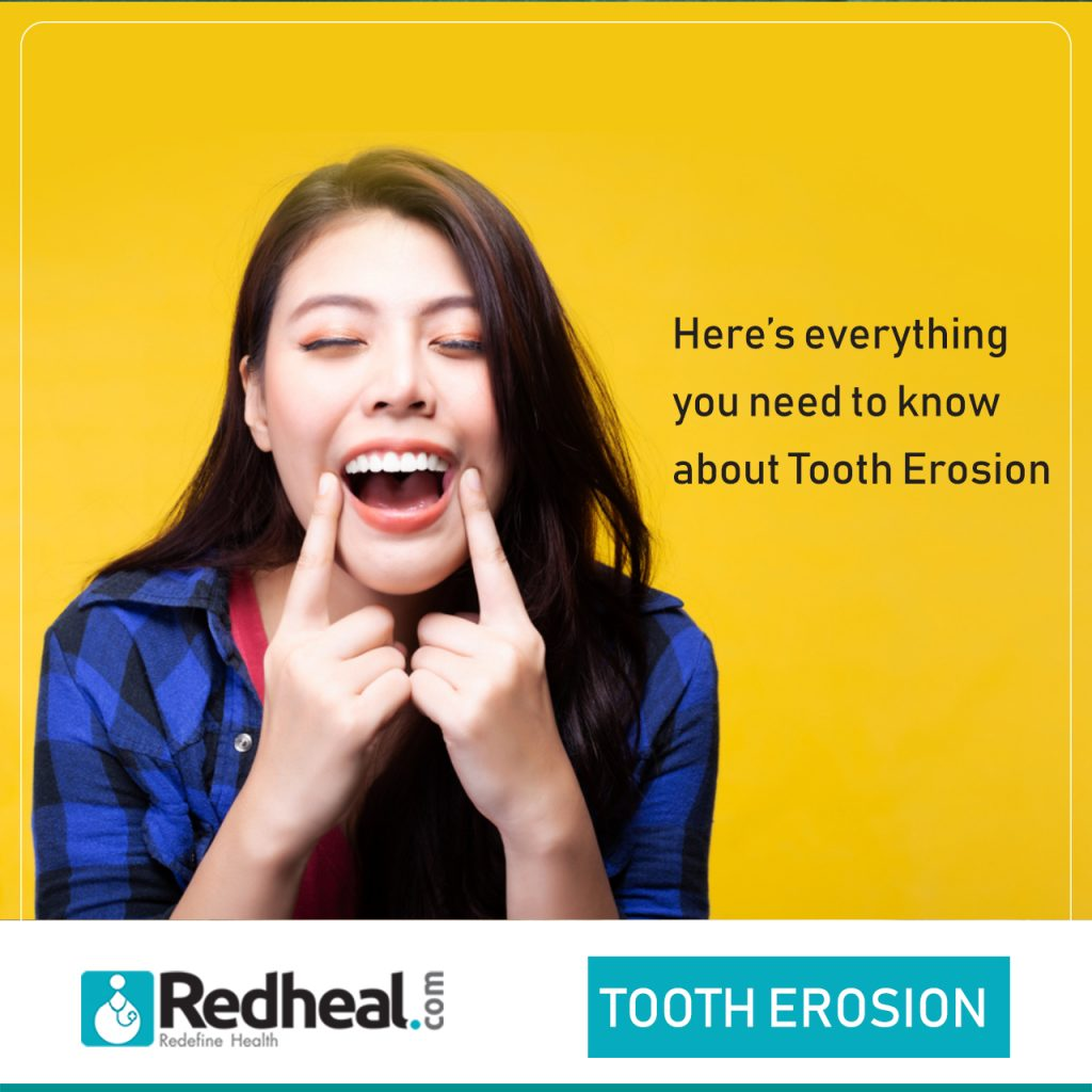 Tooth Decay, Causes, Symptoms and Risk Factors