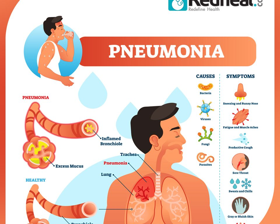 Pneumonia: The Lung Infection