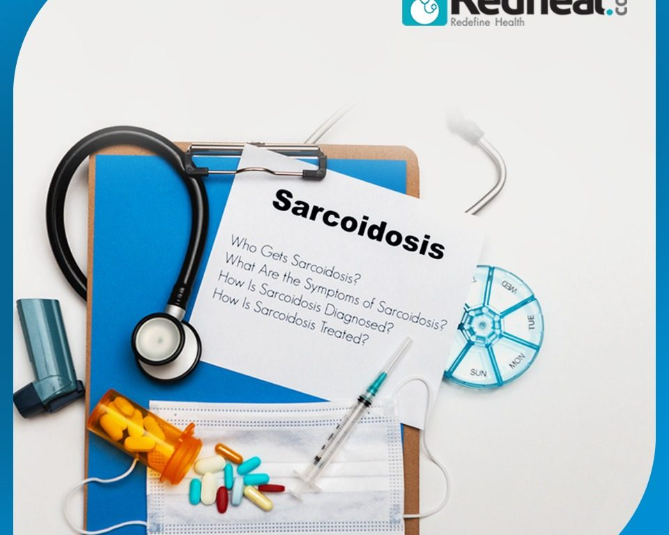 Sarcoidosis: Know from the expert