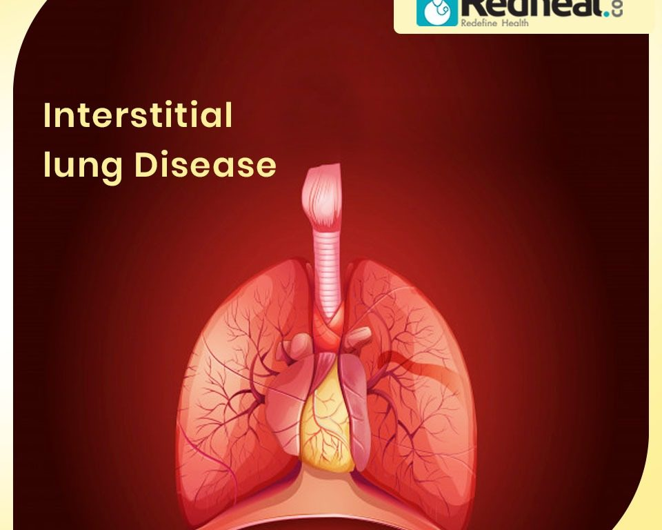 Interstitial Lung Disease: Pulmonary Fibrosis
