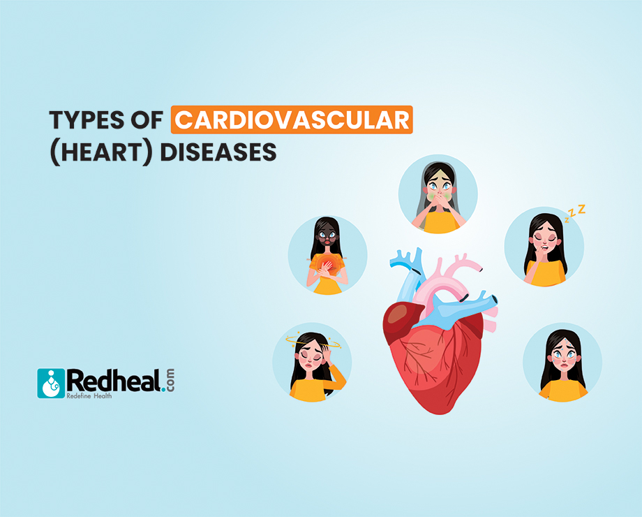 Types of Cardiovascular (heart) Diseases: Everything you need to know