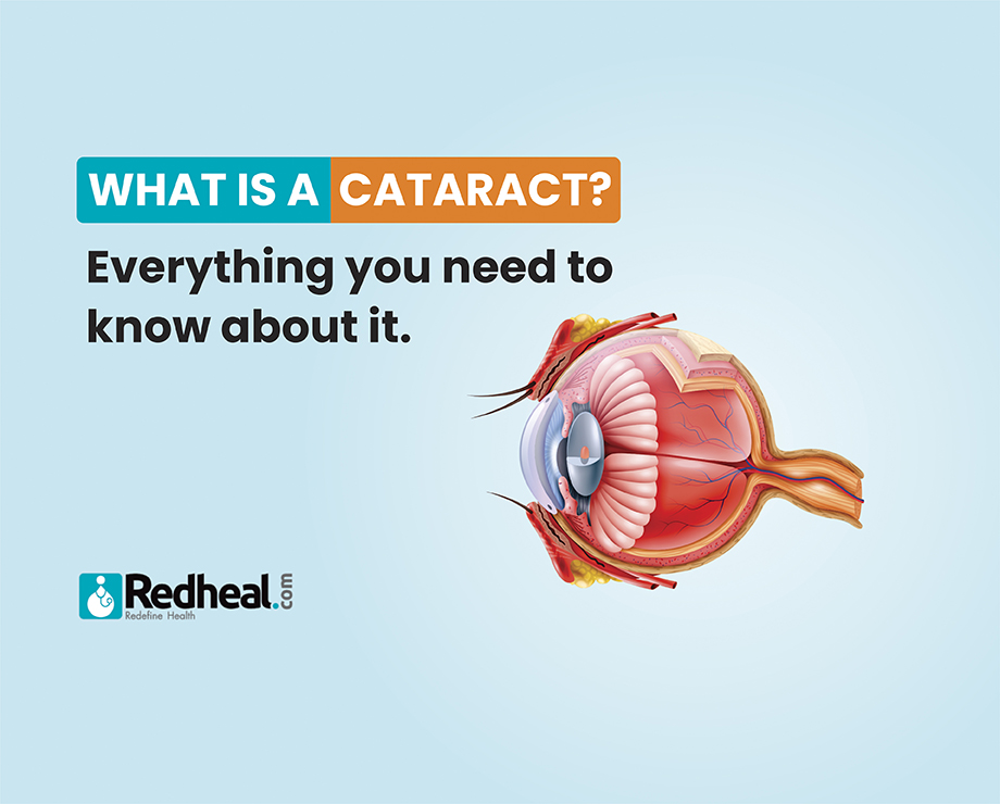 Causes and Symptoms of Cataracts