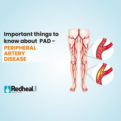 Symptoms and treatment for Peripheral artery disease