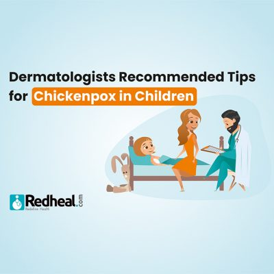 Dermatologist recommended tips for chickenpox